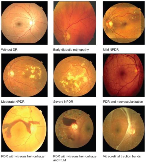 糖尿病性视网膜病变-视网膜眼底扫描